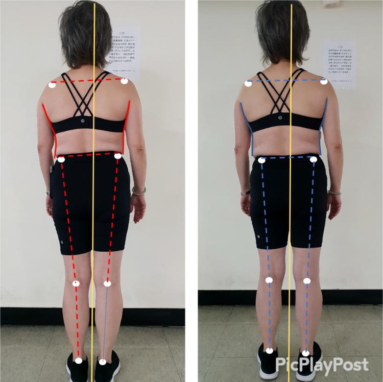 一小時評估前後對照 脊椎側彎及重心改善
